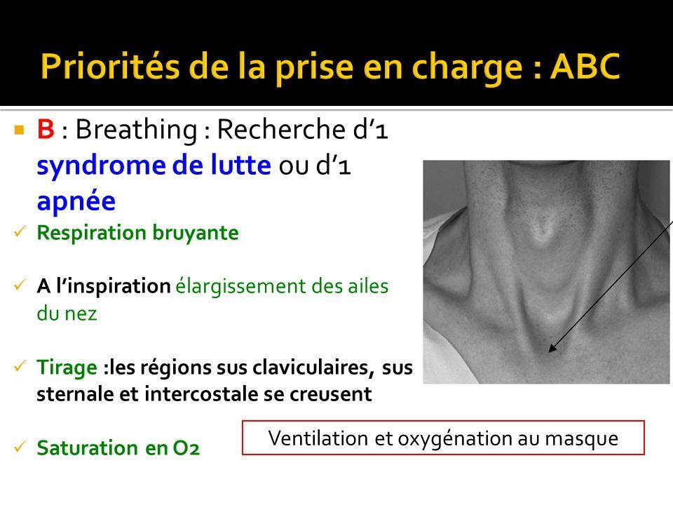 B : Breathing : Recherche d1 syndrome de lutte ou d1 apnée Respiration bruyante A linspiration élargissement des ailes du nez Tirage :les régions sus