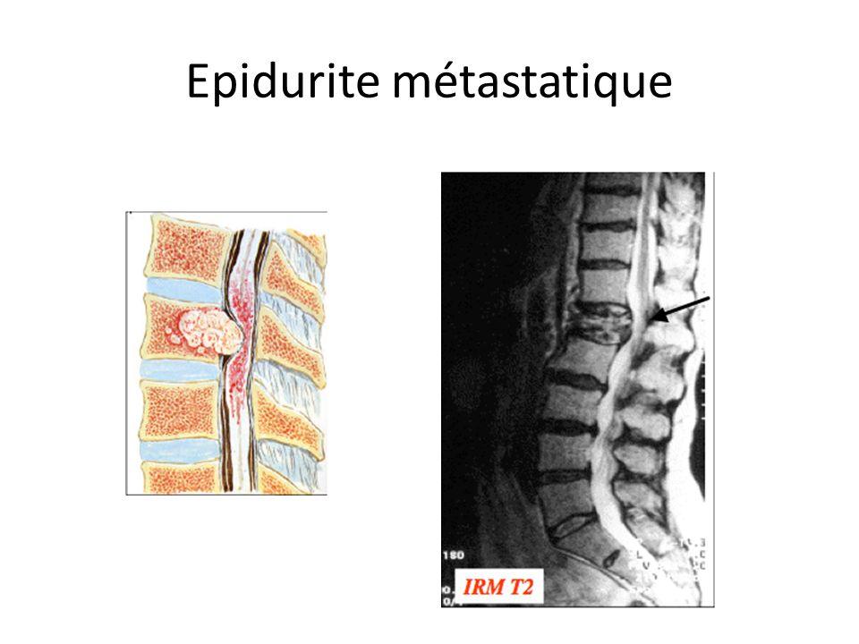 Epidurite métastatique