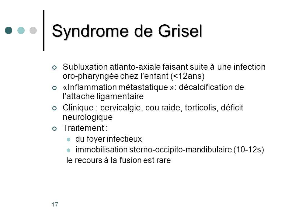 17 Syndrome de Grisel Subluxation atlanto-axiale faisant suite à une infection oro-pharyngée chez lenfant (<12ans) «Inflammation métastatique »: décal