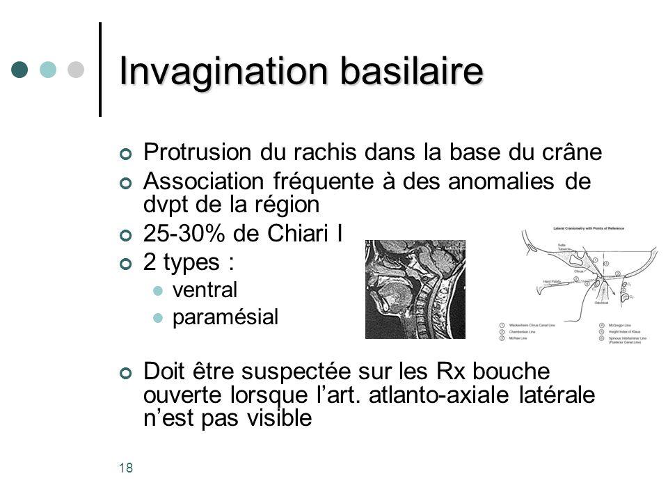 18 Invagination basilaire Protrusion du rachis dans la base du crâne Association fréquente à des anomalies de dvpt de la région 25-30% de Chiari I 2 t