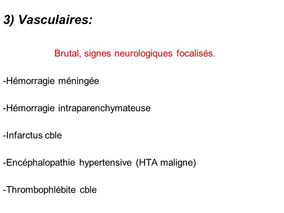 3) Vasculaires: Brutal, signes neurologiques focalisés.