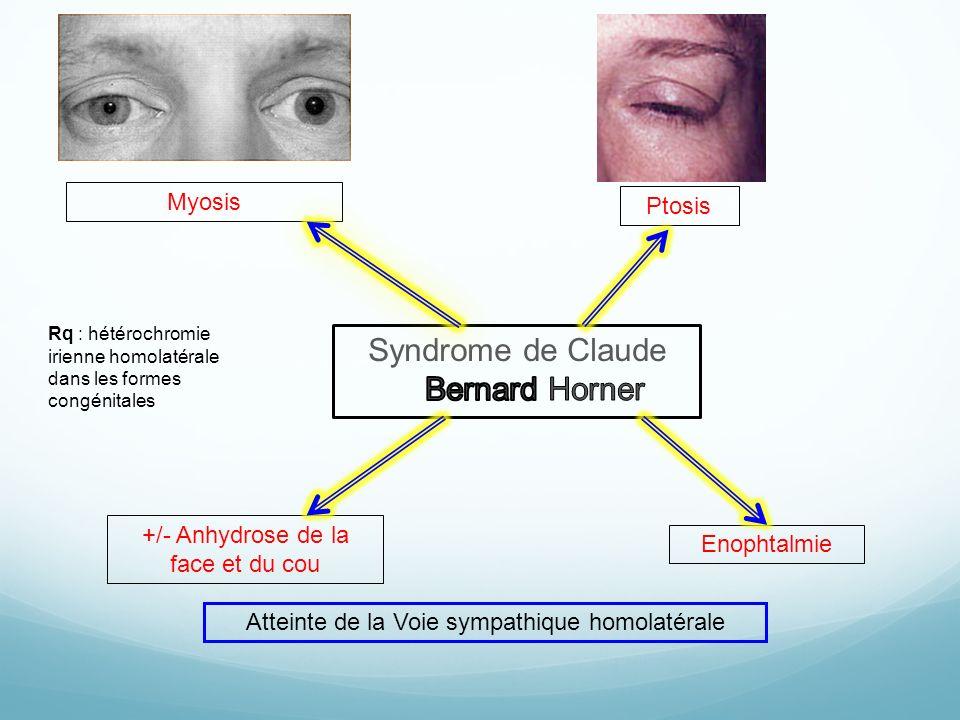 +/- Anhydrose de la face et du cou Myosis Ptosis Enophtalmie Atteinte de la Voie sympathique homolatérale Rq : hétérochromie irienne homolatérale dans