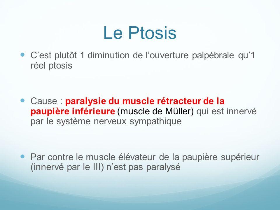 Le Ptosis Cest plutôt 1 diminution de louverture palpébrale qu1 réel ptosis Cause : paralysie du muscle rétracteur de la paupière inférieure (muscle d