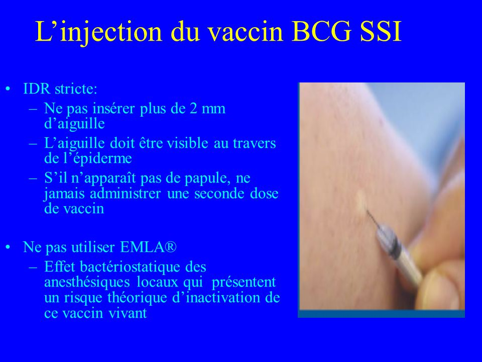 Linjection du vaccin BCG SSI Recommandation : dans la région deltoïdienne du bras, jonction du 1/3 moyen et du 1/3 supérieur, au niveau de linsertion du deltoïde Correspond souvent à un changement dhabitudes Difficile chez le nourrisson Plus facile avec la pratique régulière