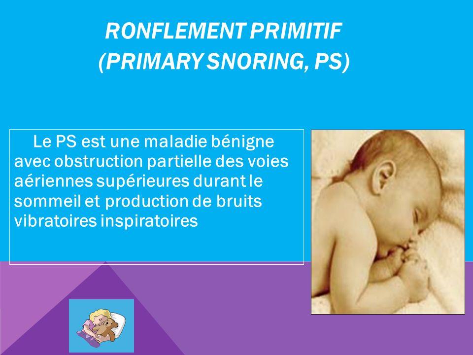 RONFLEMENT PRIMITIF (PRIMARY SNORING, PS) Le PS est une maladie bénigne avec obstruction partielle des voies aériennes supérieures durant le sommeil e