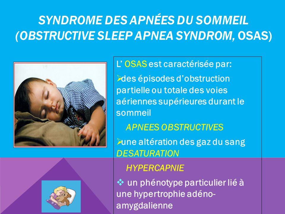 SYNDROME DES APNÉES DU SOMMEIL (OBSTRUCTIVE SLEEP APNEA SYNDROM, OSAS) L OSAS est caractérisée par: des épisodes dobstruction partielle ou totale des