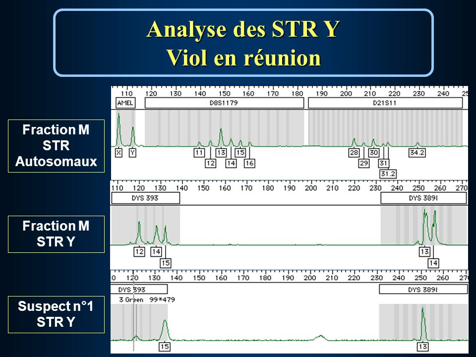 Analyse des STR Y Viol en réunion Fraction M STR Autosomaux Suspect n°1 STR Y Fraction M STR Y