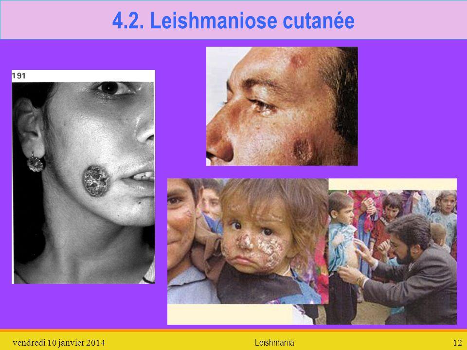 vendredi 10 janvier 2014Leishmania12 4.2. Leishmaniose cutanée
