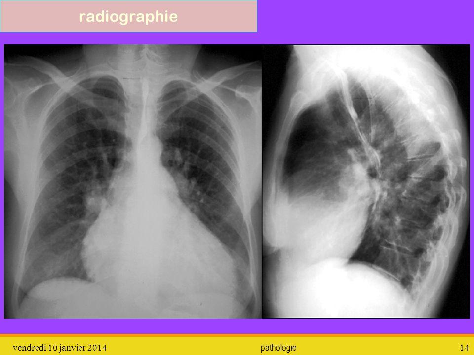 vendredi 10 janvier 2014 pathologie 15 radiographie Pneumonie lobaire franche (pneumocoque)