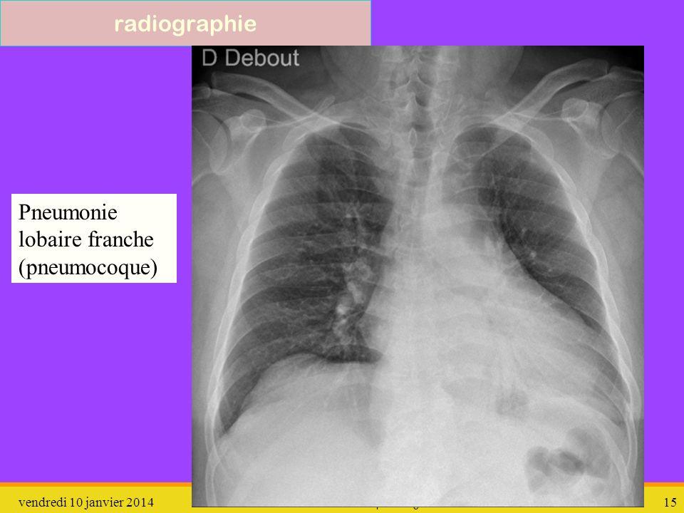 vendredi 10 janvier 2014 pathologie 16 scan Pneumonie lobaire franche (pneumocoque)