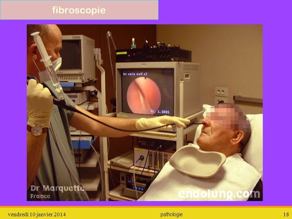 vendredi 10 janvier 2014 pathologie 19 fibroscopie