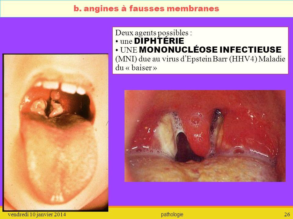 vendredi 10 janvier 2014 pathologie 27 b.angines à fausses membranes Que faire .