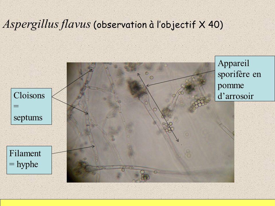 Aspergillus flavus (observation à lobjectif X 40) Cloisons = septums Filament = hyphe Appareil sporifère en pomme darrosoir