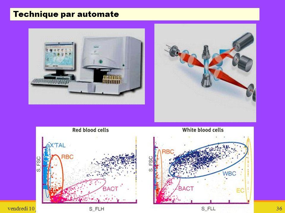 vendredi 10 janvier 2014ITU et ECBU36 Technique par automate