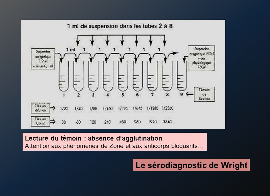 Le sérodiagnostic de Wright Lecture du témoin : absence dagglutination Attention aux phénomènes de Zone et aux anticorps bloquants…