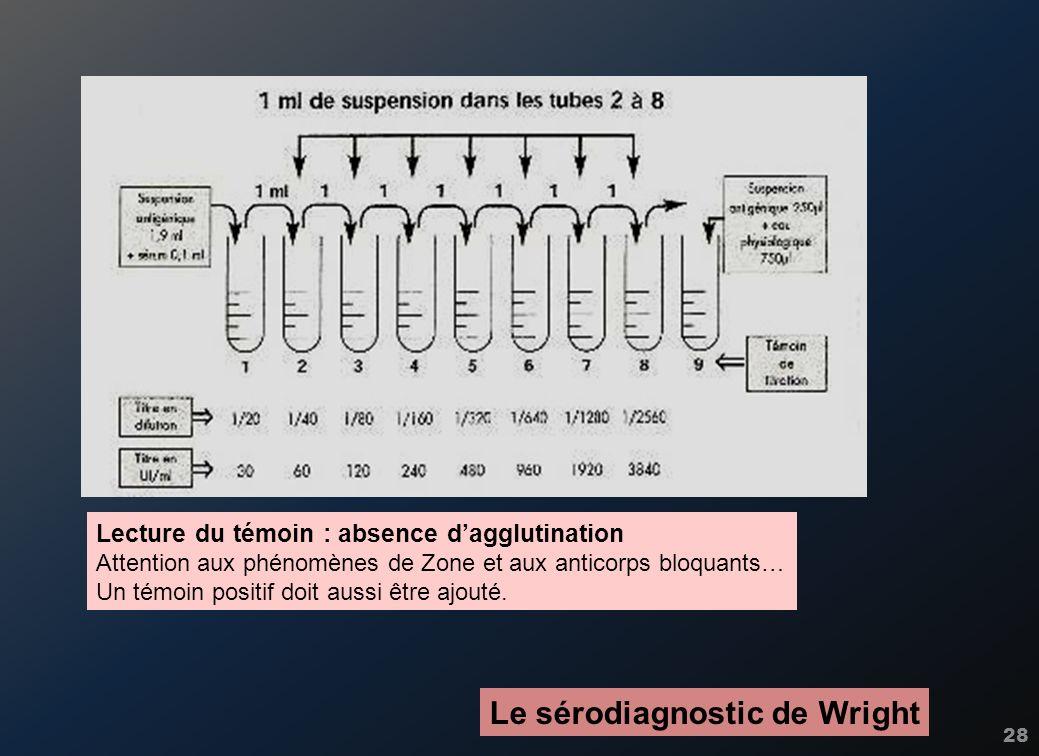 28 Le sérodiagnostic de Wright Lecture du témoin : absence dagglutination Attention aux phénomènes de Zone et aux anticorps bloquants… Un témoin posit