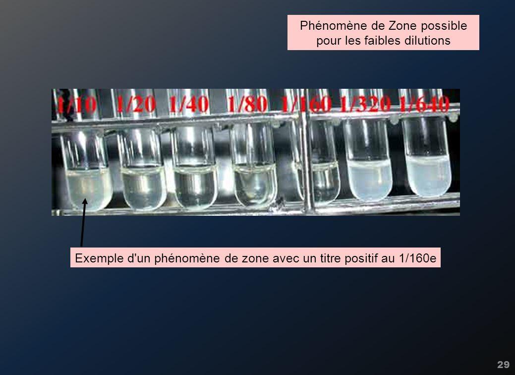 29 Phénomène de Zone possible pour les faibles dilutions Exemple d'un phénomène de zone avec un titre positif au 1/160e