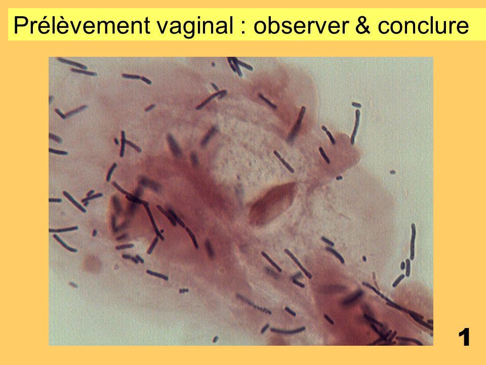 0 Contrôle sexuel de Microbiologie