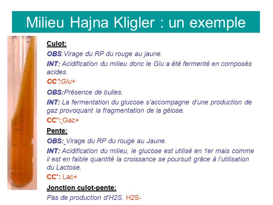 Milieu Hajna Kligler : un exemple Culot: OBS OBS:Virage du RP du rouge au jaune.