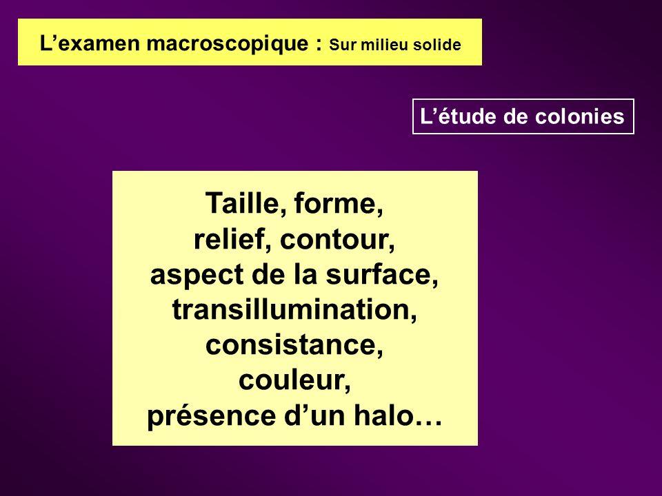 Lexamen macroscopique : Sur milieu solide Létude de colonies Taille, forme, relief, contour, aspect de la surface, transillumination, consistance, cou