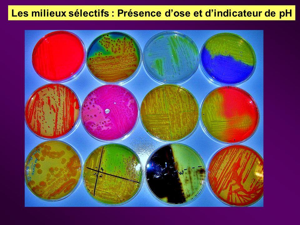 Les milieux sélectifs : Présence dose et dindicateur de pH