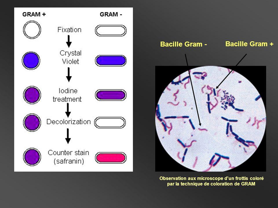 Coque Gram - Bacille Gram + Coloration différentielle Bacille Gram – et Coques Gram +