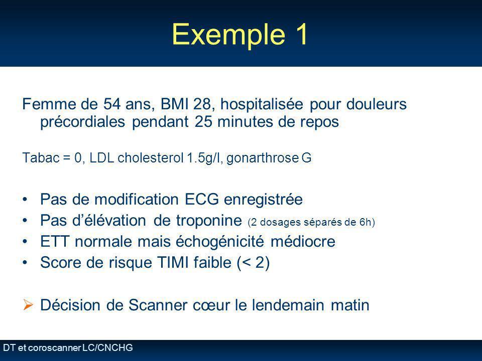 DT et coroscanner LC/CNCHG Exemple 1 Femme de 54 ans, BMI 28, hospitalisée pour douleurs précordiales pendant 25 minutes de repos Tabac = 0, LDL chole