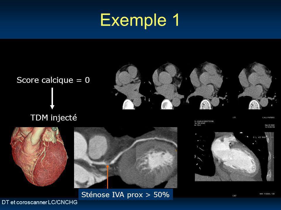 DT et coroscanner LC/CNCHG Exemple 1 Score calcique = 0 TDM injecté Sténose IVA prox > 50%