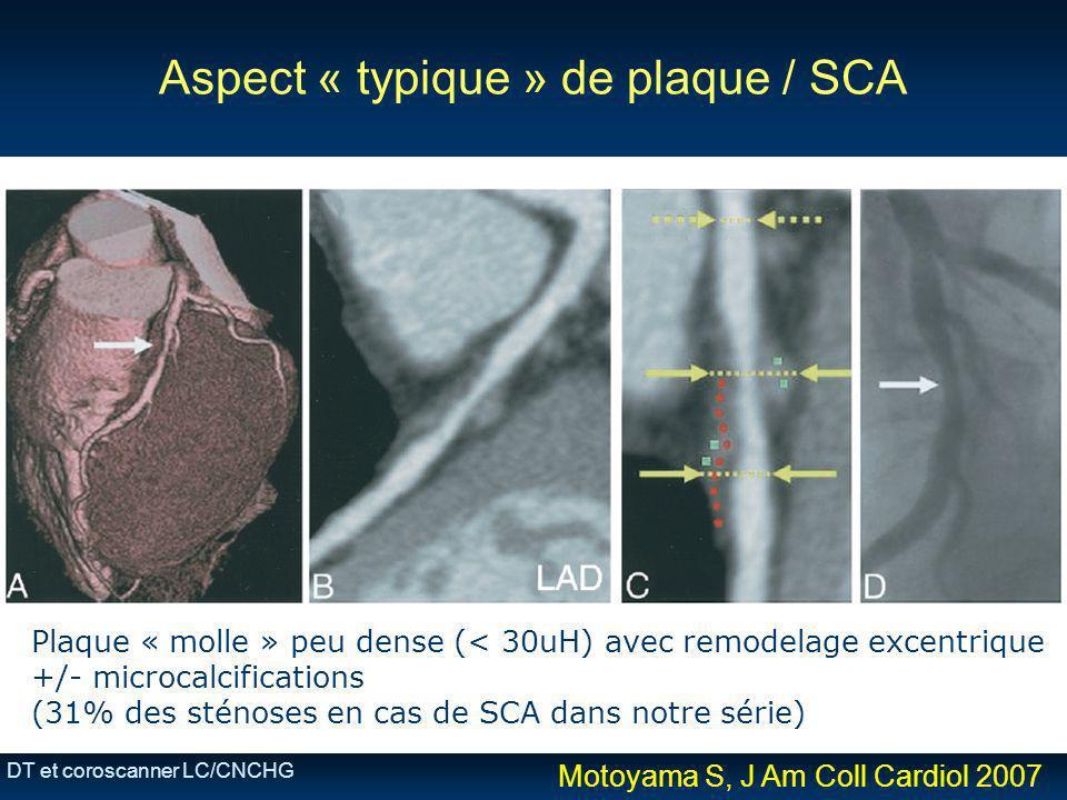 DT et coroscanner LC/CNCHG Aspect « typique » de plaque / SCA Plaque « molle » peu dense (< 30uH) avec remodelage excentrique +/- microcalcifications