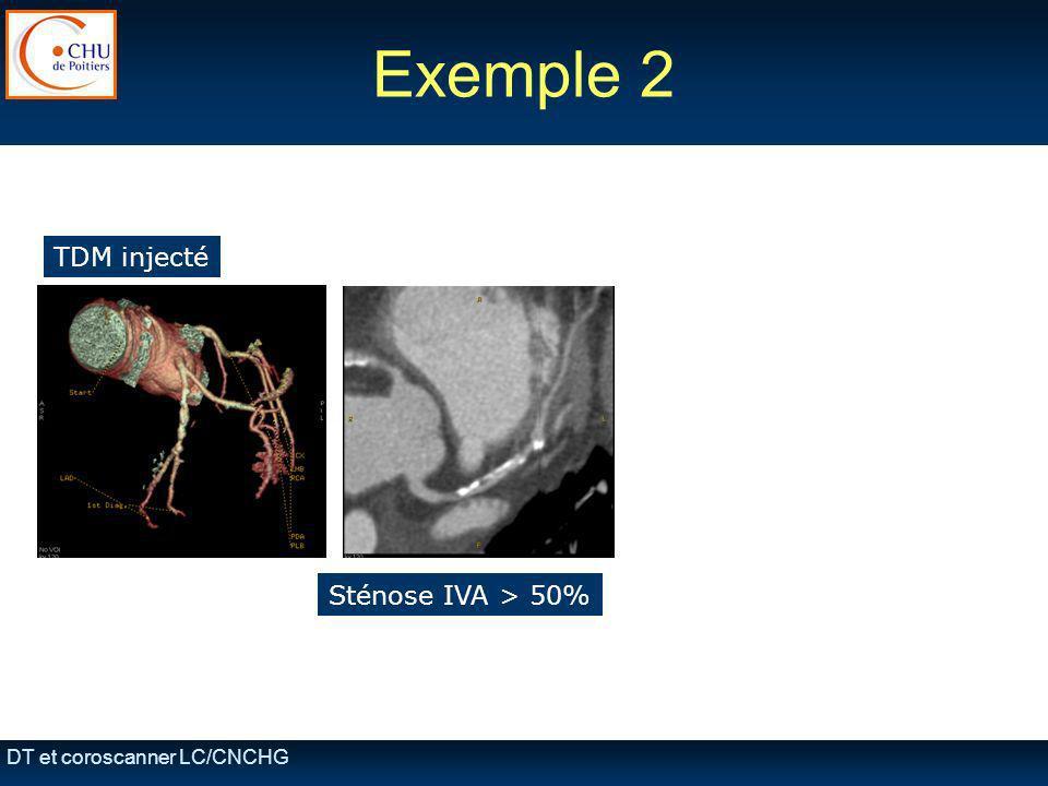 DT et coroscanner LC/CNCHG Exemple 2 TDM injecté Sténose IVA > 50% + hématome disséquant aorte descendante + embolie pulmonaire
