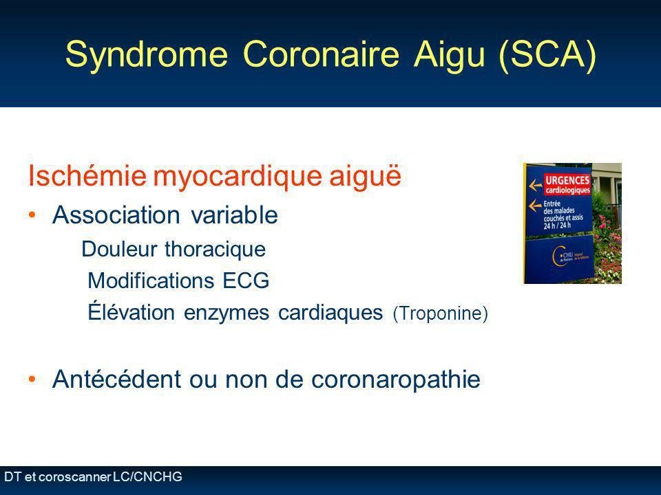 DT et coroscanner LC/CNCHG Syndrome Coronaire Aigu (SCA) Ischémie myocardique aiguë Association variable Douleur thoracique Modifications ECG Élévatio
