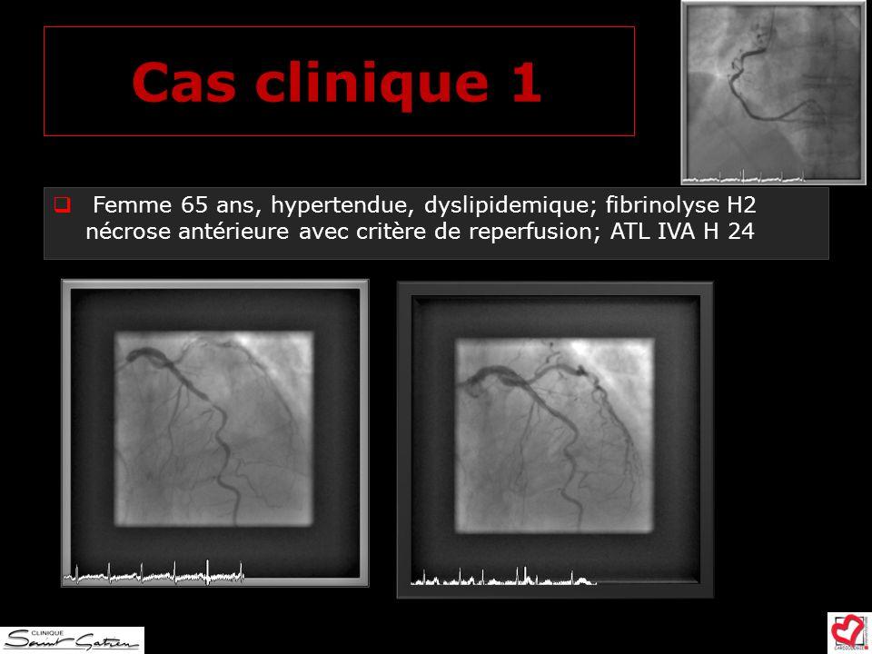 Cas clinique 1 Femme 65 ans, hypertendue, dyslipidemique; fibrinolyse H2 nécrose antérieure avec critère de reperfusion; ATL IVA H 24