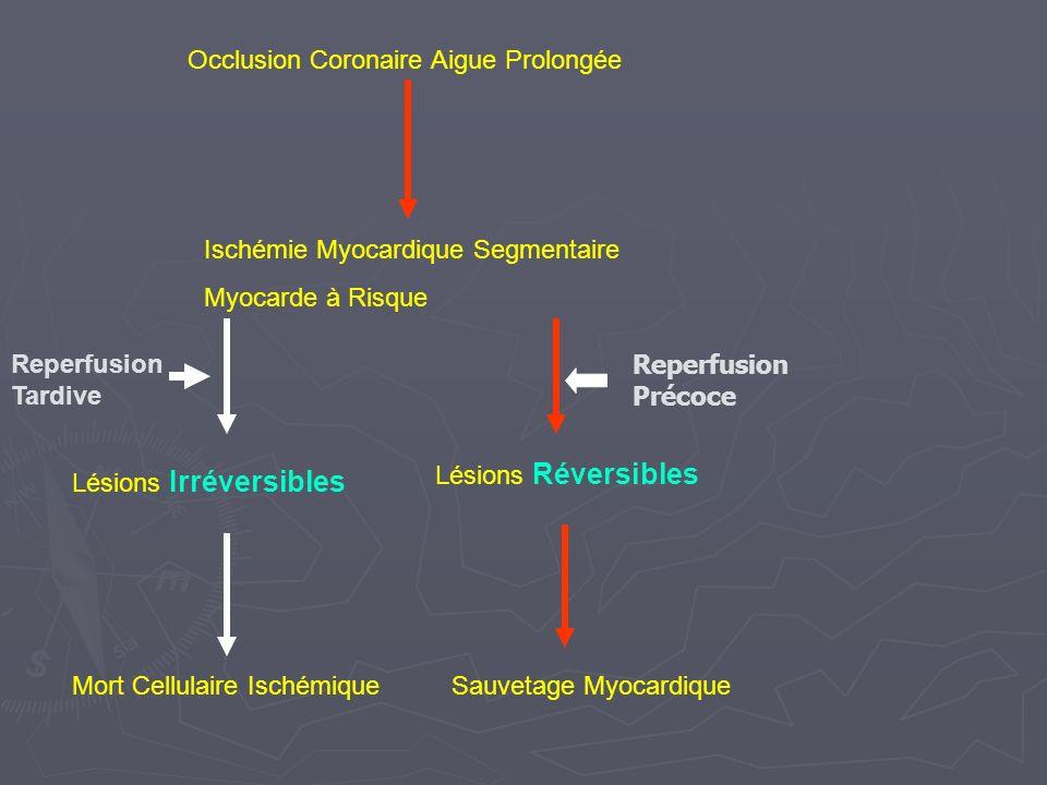 Occlusion Coronaire Aigue Prolongée Ischémie Myocardique Segmentaire Myocarde à Risque Mort Cellulaire IschémiqueSauvetage Myocardique Lésions Irréversibles Lésions Réversibles Reperfusion Tardive Reperfusion Précoce
