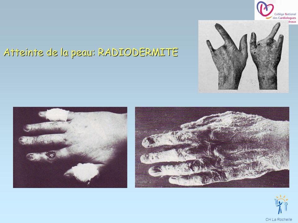 CH La Rochelle Atteinte de la peau: RADIODERMITE