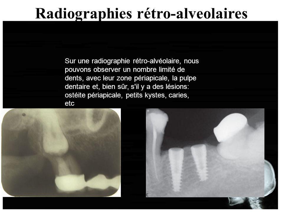 Radiographies rétro-alveolaires Sur une radiographie rétro-alvéolaire, nous pouvons observer un nombre limité de dents, avec leur zone périapicale, la
