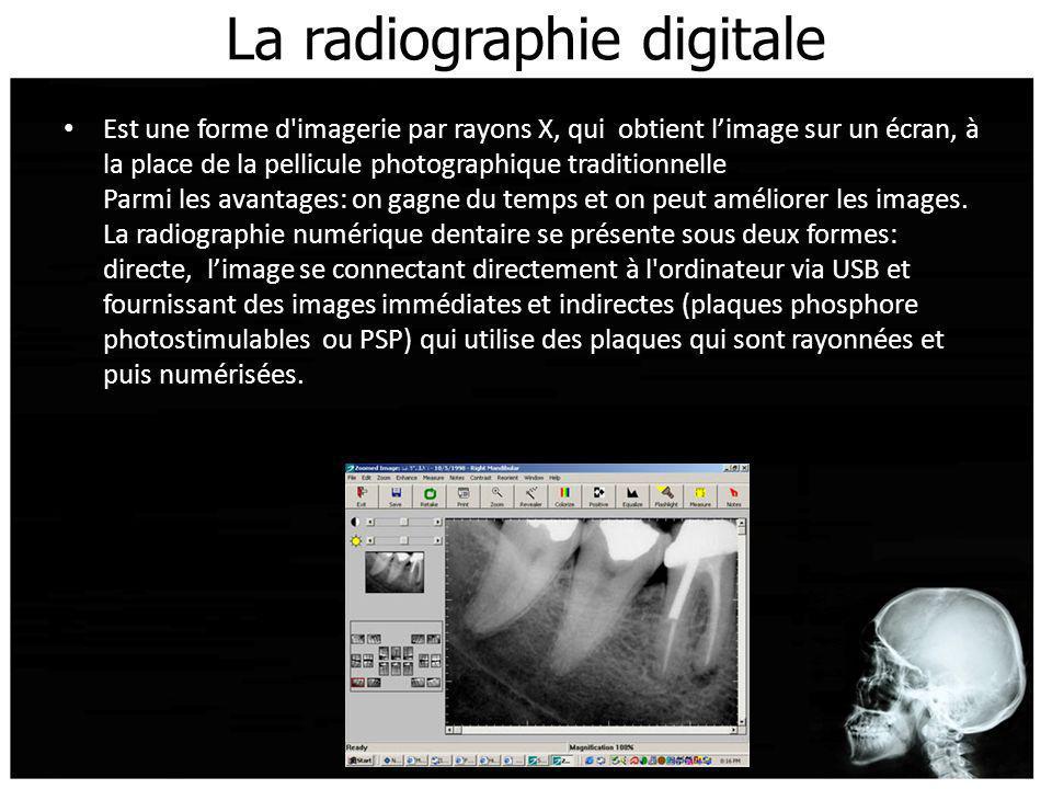 La radiographie digitale Est une forme d'imagerie par rayons X, qui obtient limage sur un écran, à la place de la pellicule photographique traditionne