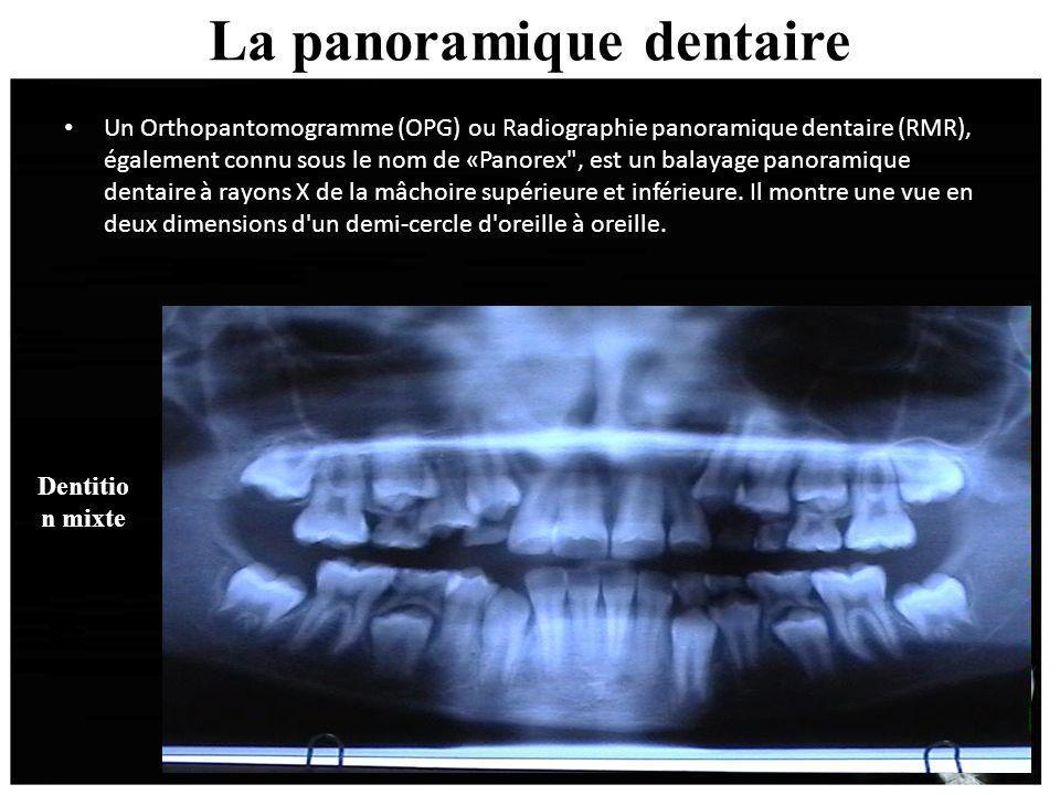 La panoramique dentaire Un Orthopantomogramme (OPG) ou Radiographie panoramique dentaire (RMR), également connu sous le nom de «Panorex