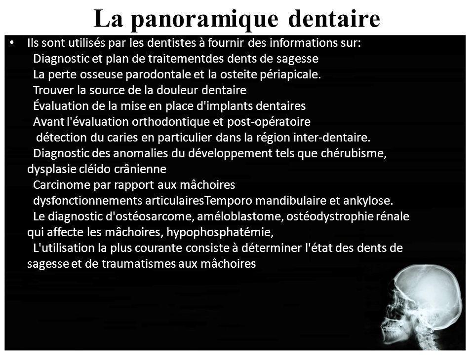 La panoramique dentaire Ils sont utilisés par les dentistes à fournir des informations sur: Diagnostic et plan de traitementdes dents de sagesse La pe