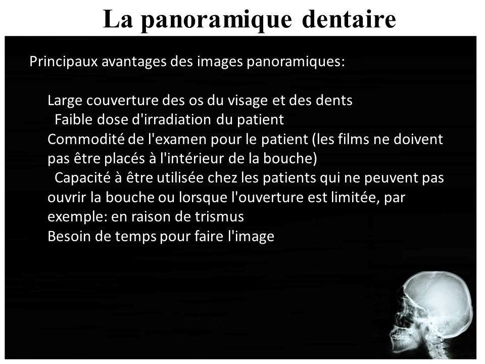 La panoramique dentaire Principaux avantages des images panoramiques: Large couverture des os du visage et des dents Faible dose d'irradiation du pati