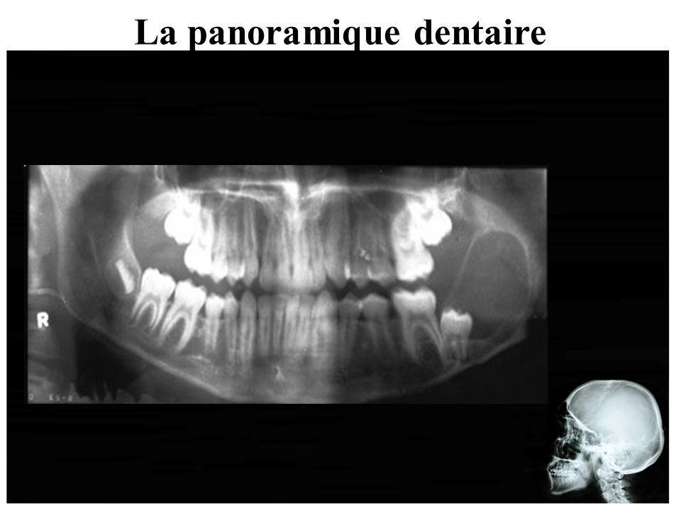 La panoramique dentaire