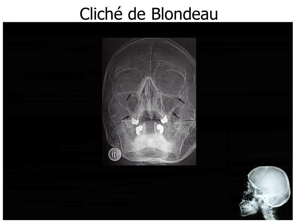 Cliché de Blondeau