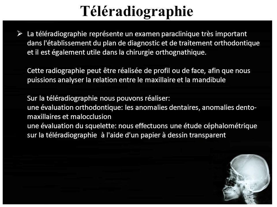 Téléradiographie La téléradiographie représente un examen paraclinique très important dans l'établissement du plan de diagnostic et de traitement orth