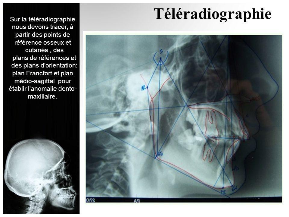 Téléradiographie Sur la téléradiographie nous devons tracer, à partir des points de référence osseux et cutanés, des plans de références et des plans