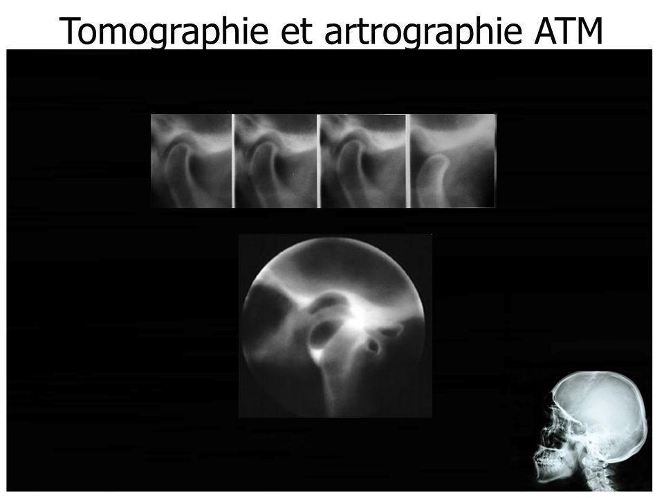 Tomographie et artrographie ATM