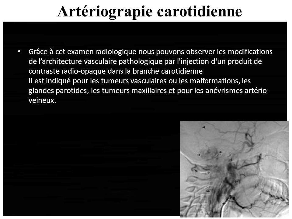 Artériograpie carotidienne Grâce à cet examen radiologique nous pouvons observer les modifications de larchitecture vasculaire pathologique par l'inje