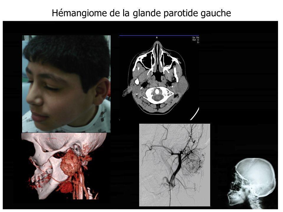 Hémangiome de la glande parotide gauche