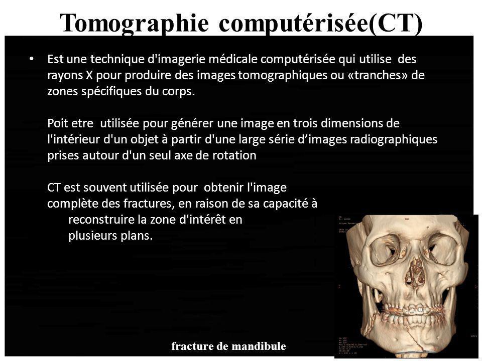 Tomographie computérisée(CT) Est une technique d'imagerie médicale computérisée qui utilise des rayons X pour produire des images tomographiques ou «t