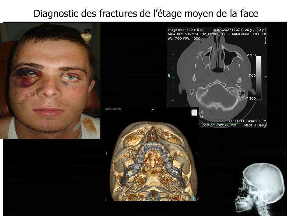 Diagnostic des fractures de létage moyen de la face