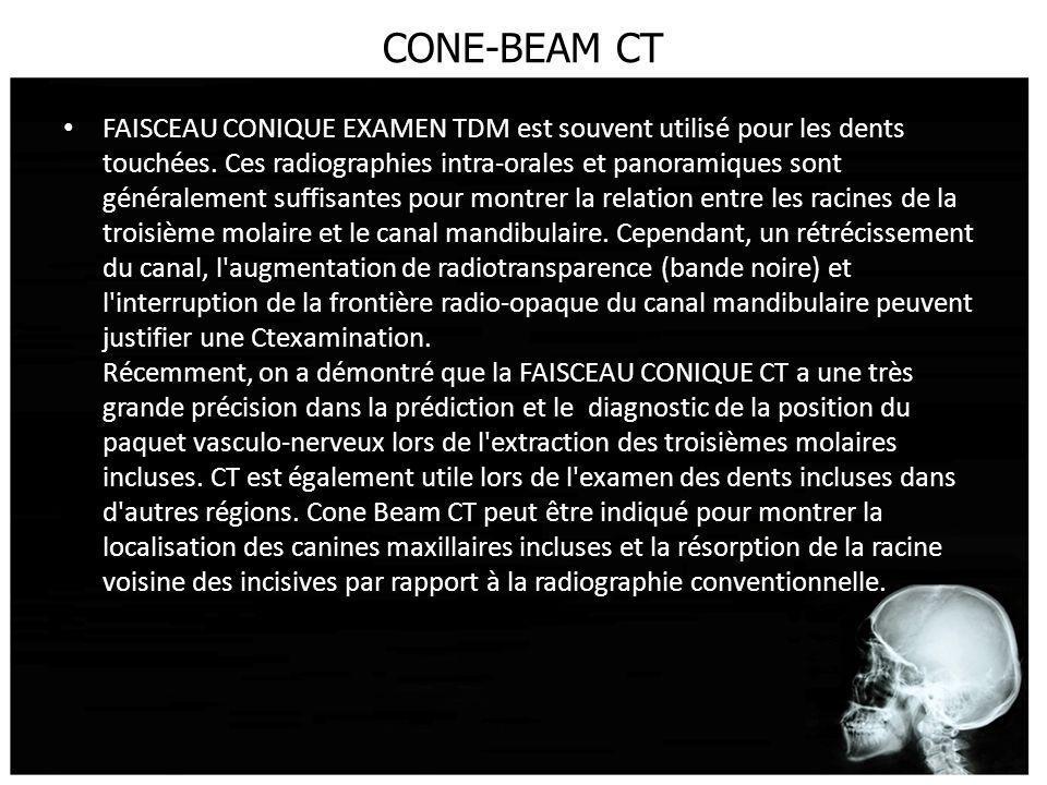 CONE-BEAM CT FAISCEAU CONIQUE EXAMEN TDM est souvent utilisé pour les dents touchées. Ces radiographies intra-orales et panoramiques sont généralement