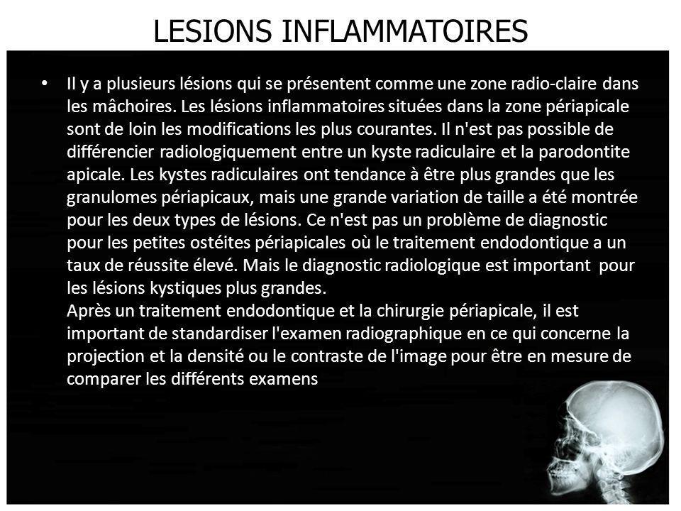 LESIONS INFLAMMATOIRES Il y a plusieurs lésions qui se présentent comme une zone radio-claire dans les mâchoires. Les lésions inflammatoires situées d